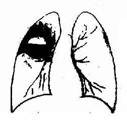 右肺上叶肺脓肿,空洞内有气液面,周围有广泛浸润