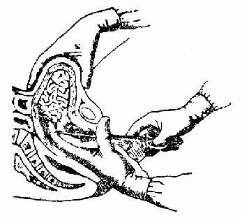 用環鉗行宮腔填塞