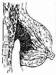 乳房深部脓肿的引流