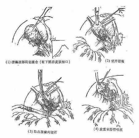 胆囊造瘘术