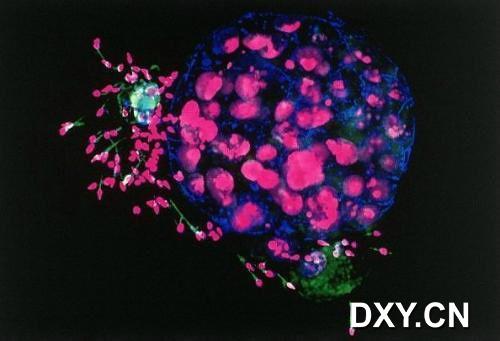 人类胚胎和精子