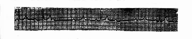 Ⅱ度Ⅰ型房室传导阻滞(文氏现象)