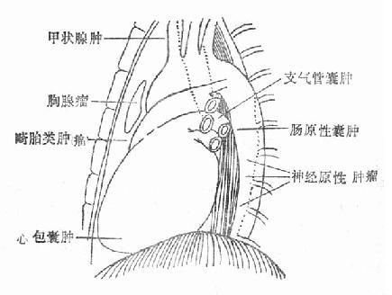 纵隔肿瘤及囊肿多发部位示意图