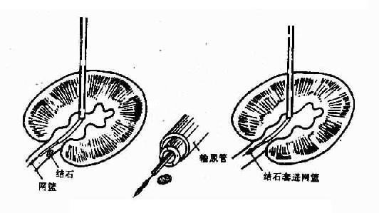经皮肾盂造口术(套取结石)示意图
