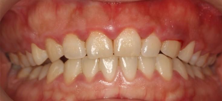 慢性牙龈炎.jpg