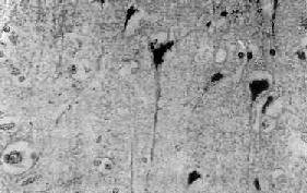 神经细胞缺血性变化