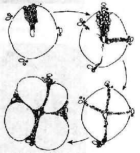 门脉性肝硬变假小叶形成过程示意图