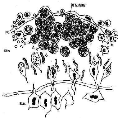 脂纹组织结构模式图