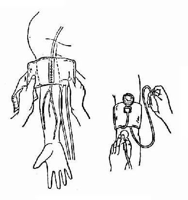上肢肱动脉测量法
