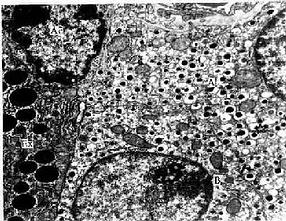 胰岛各种细胞