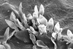 苹果黑星菌(Venturia inaequalis)分生孢子