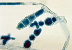 絮状表皮癣菌