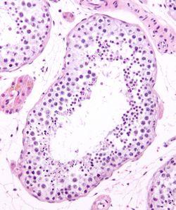 Seminiferous tubule and sperm low mag.jpg