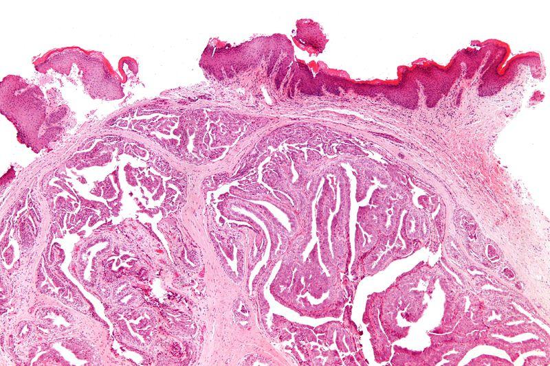 文件:Papillary hidradenoma - low mag.jpg
