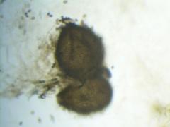 Sordaria fimicola perithecium magnified 40x