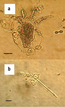 蛙壺菌的游離孢子