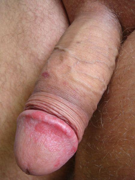 文件:Balanitis on an intact penis.jpg