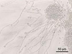 白色念珠菌 Candida albicans