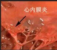 心 細菌 内 膜 炎 性