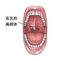 扁桃 炎 慢性 腺